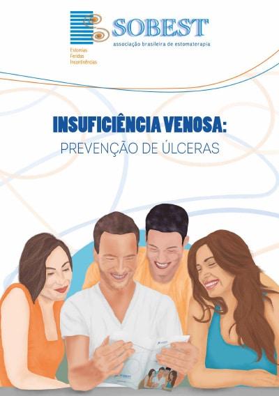 Capa do Livro Insuficiência Venosa: Prevenção de Úlceras