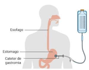 gastromia